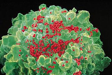 VIH: des généticiens cartographient les résistances humaines au sida