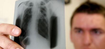 Tuberculose: les promesses d'un antibiotique modifié