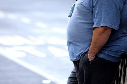 Surpoids et obésité réduiraient l'espérance de vie de 1 à 10 ans