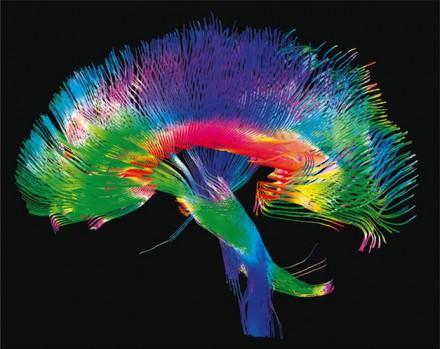 Maladie de Huntington : des neurones trop sensibles au stress cellulaire