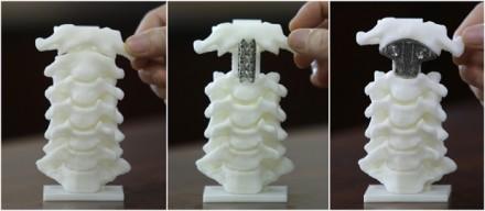 3D-printed vertebra used in spine surgery
