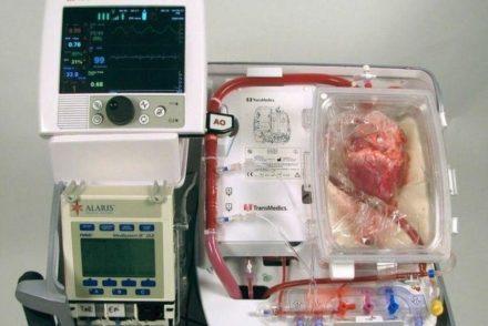Des médecins greffent des cœurs ayant cessé de battre