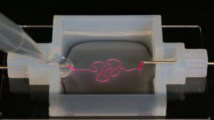 3-D-Printed Kidney Parts Just Got Closer to Reality