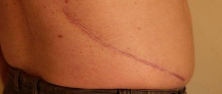 La cicatrisation sans cicatrice est-elle envisageable?