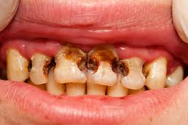 Mutated genes lead to tooth decay