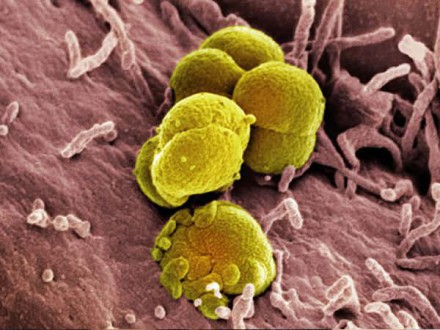 Gonorrhée résistanteaux antibiotiques : Debiopharm décroche une bourse