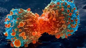 Créer un registre des cancers? Trop cher!