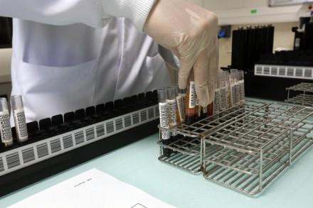 Hépatite B et C: la Suisse offre le dépistage