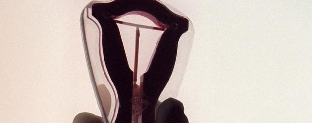 Le stérilet protégerait contre le cancer du col de l'utérus