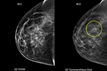 La consommation d'alcool favorise le cancer du sein