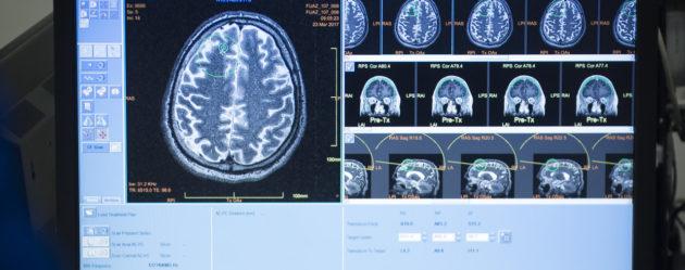 Alzheimer: un mythe à bout de souffle?