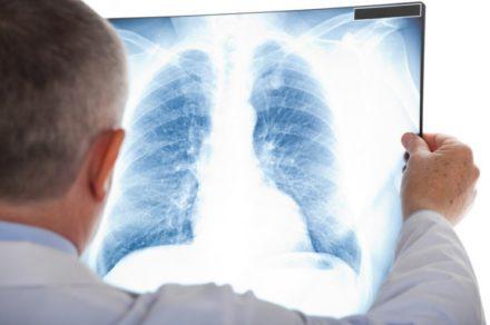 Genkyotex : annonce l'approbation par la FDA de l'essai de Phase 2 avec le GKT831 dans la fibrose pulmonaire