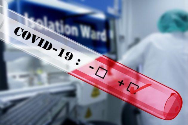 Les tests de dépistage du Covid-19 seront gratuits pour tous