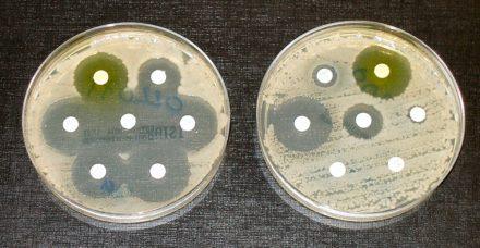 Une enquête sur la résistance aux antibiotiques qui mène jusqu'en Inde