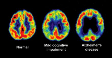 Swiss research played key role in new Alzheimer's drug