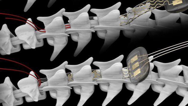 [Campus Biotech] Un nouvel implant contrôle l'activité des neurones par la lumière